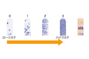 細菌レベル検査