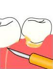 歯肉を切開